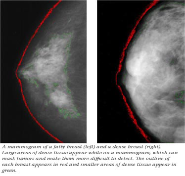 dense breast vs fatty breast